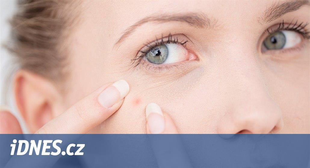 Hormonální cyklus pleti ve třech fázích. Způsobuje akné i šupinky