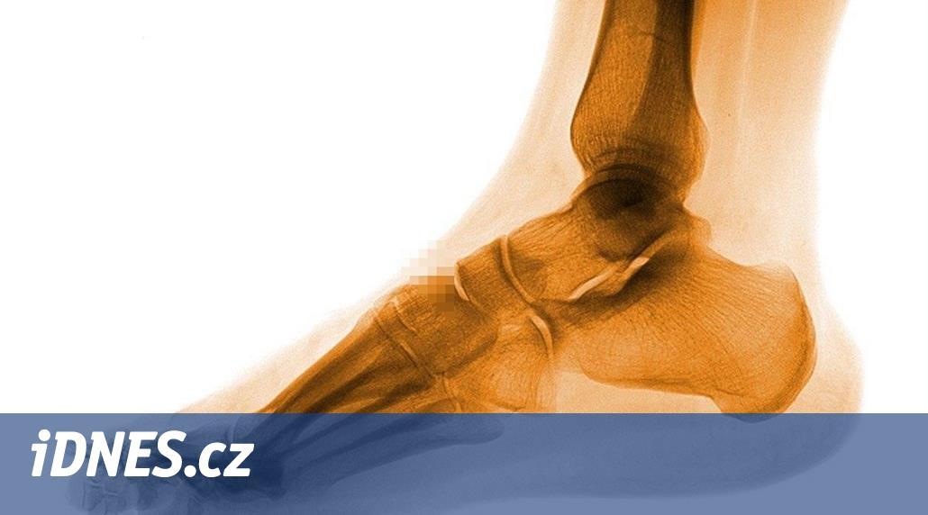 Lékař myslel, že mám artrózu, byla to únavová zlomenina sezamské kůstky